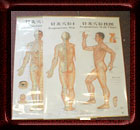 Acupuncture 3 Large Wall Charts